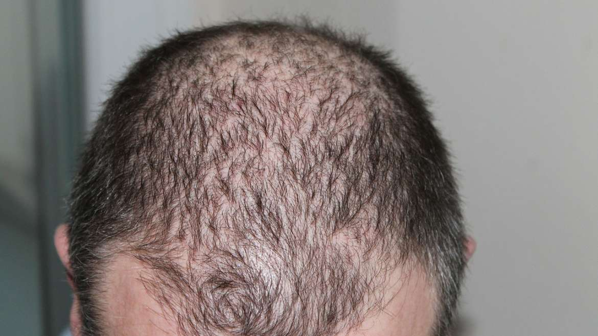 Complete Guide About Hair Loss myths, Causes and how to get rid from Hair Loss