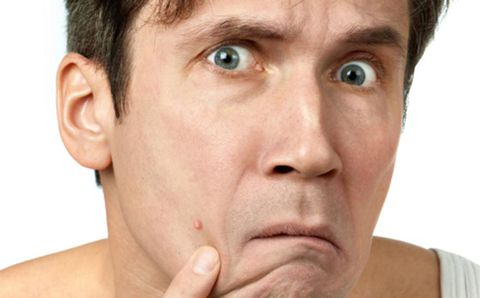 10 Simple and New Ways To Prevent Men's Acne That Every Man Must Use