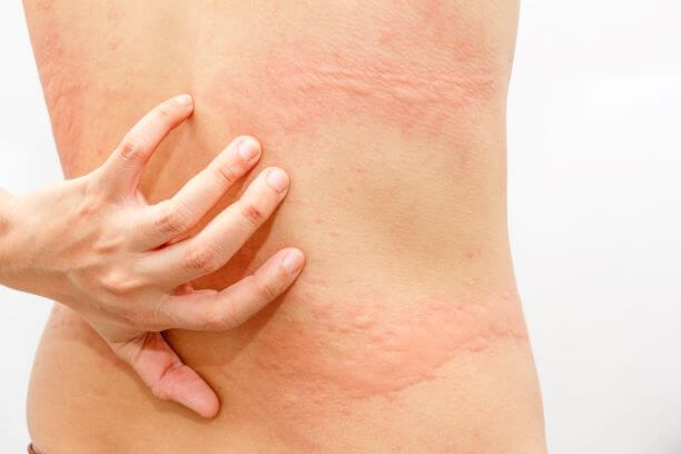 Eczema Disease is Caused Due To These 10 Things