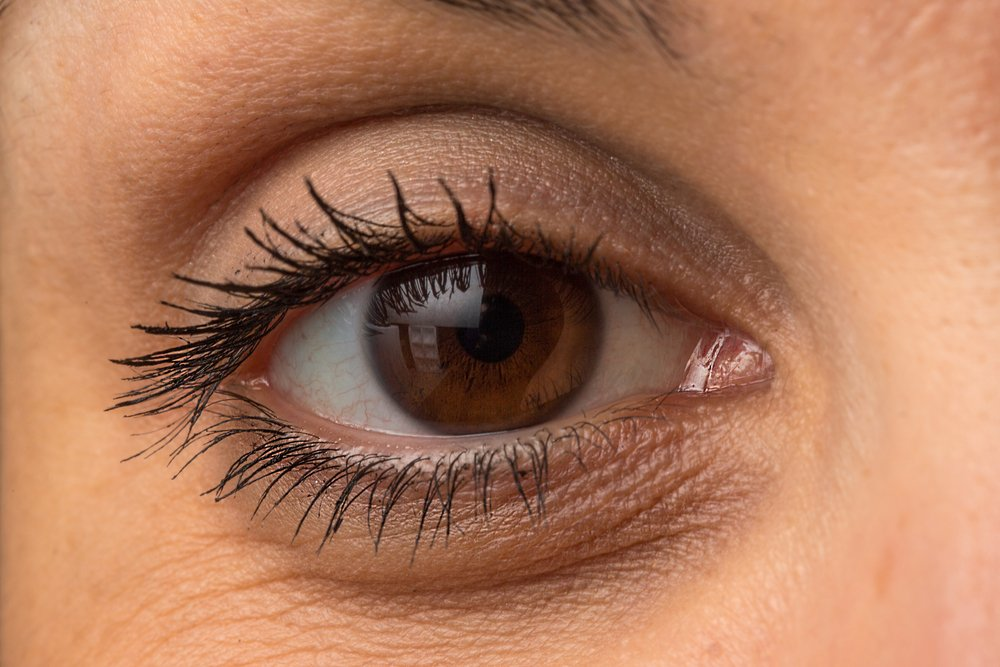 17 Most Effective and Easy Ways to Remove Eye Bags Naturally