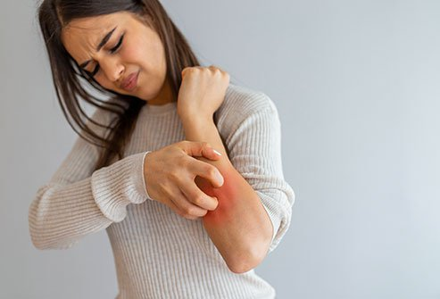 Everyone should know these causes of itching and these effective ways to get rid of it
