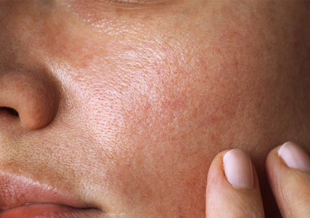 11 Most Effective Ways to Get Rid of Wrinkles on the Face Naturally